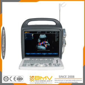 15inch Hospital Equipment Laptop Color Doppler Ultrasound Bcu30 pictures & photos