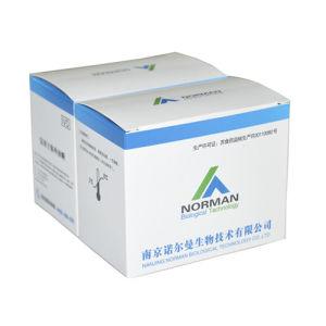 Pgii Test Rapid Test Poct Kits for Fluorescence Immunoassay pictures & photos