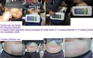 Coolplas Cryolipolysis Criolipolyse Non Invasive Fat Freeze Freezing Fat Melting Body Shape Machine pictures & photos