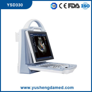 Full Digital Portable Color Doppler Ultrasound Scanner Ysd330 pictures & photos