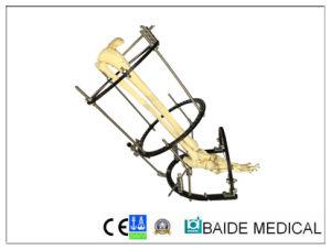 Baide Medical Ilizarov Ring Fixator