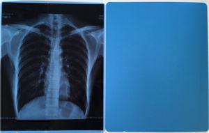 Radioactive X-ray Film pictures & photos