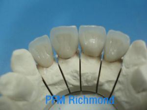 Co-Cr Porcelain Crowns and Bridges Made in China Dental Lab pictures & photos