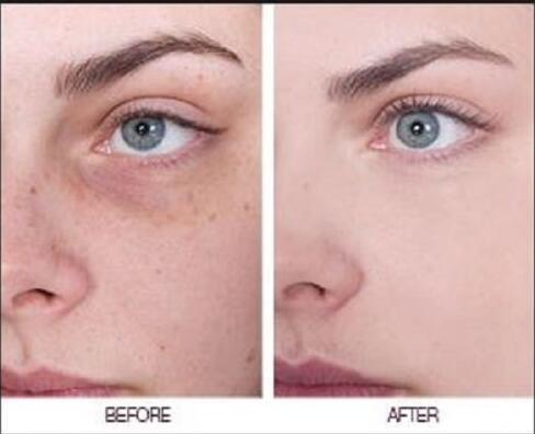 China Customized Best Skin Lightening Cream For Black Skin
