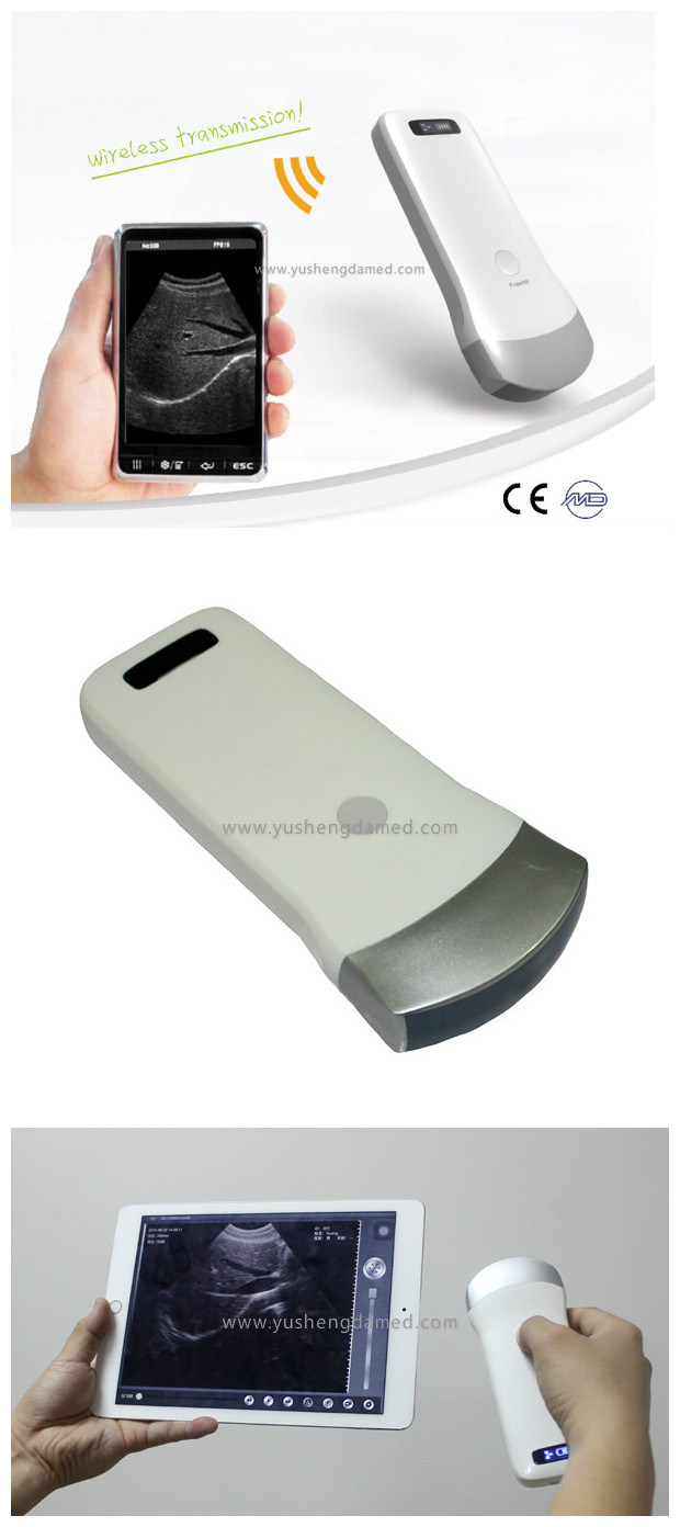 Hot Sale Wireless Convex Linear Probe 4D Bladder Ultrasound