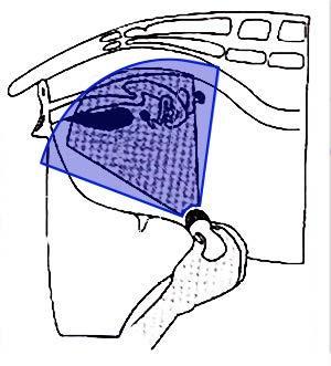 goat ultrasound machine
