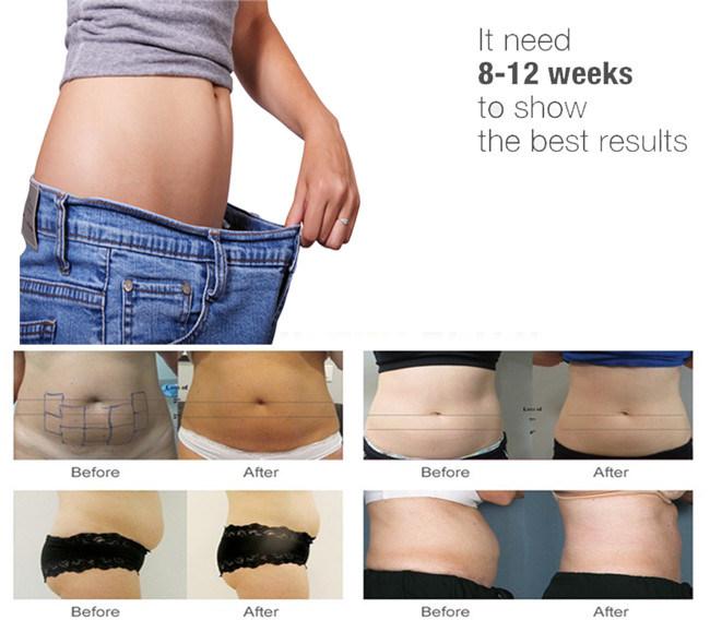 Lipo Slimming Machine Cavitation Hifu for Body Weight Loss