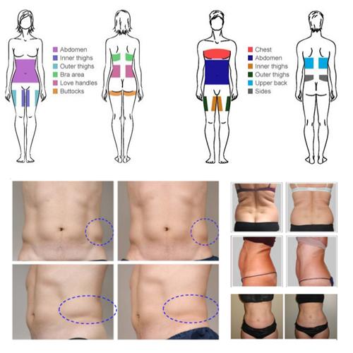 Cuerpo que adelgaza la máquina gorda de Criolipolisis