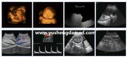 High Top 3D/4D Color Doppler Ultrasound Scanner