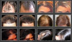2017 Good Quality Hair Care Hair Loss Treatment Hair Spraying