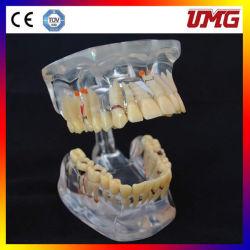 Teaching Model Adult Pathologies Model Dental Clinic
