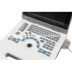 Excellent After-Sale Service Laptop Ultrasound LED Digital Scanner