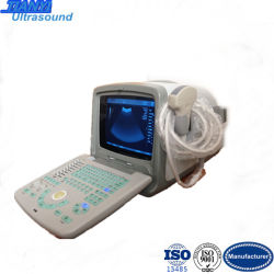 Medical Equipment Portable Hand Carried Ultrasound Scanner