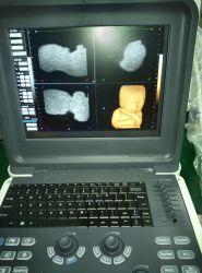 China Portable Full Digital Color Doppler Scanner Ultrasound (HUC-300)