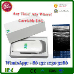 iPhone iPad Android Linear 7.5MHz Ultrasound Machine/ Wireless USG for Anesthesiology