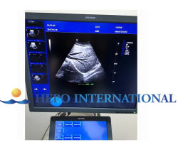 Cw Echo Medical Product Trolley Color Doppelr Ultrasound