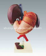 Xy-3316-5 Liver and Gallblandder, Pancreas, Stomach, Duodenum Model