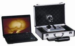 Ordinateur portable des glandes mammaires de infrarouge de type dispositif de diagnostic