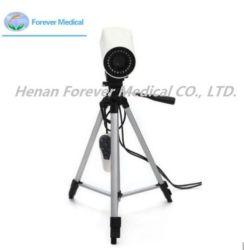 L'ISO, CE, approbation de la FDA d'Imagerie Numérique (Colposcope YJ-U150)