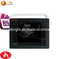 Hei?e Verkaufs-Ultraschall-Maschinen-mehrsprachiger Ultraschall mit Batterie