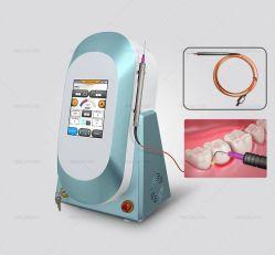 Le blanchiment des dents Diode Laser
