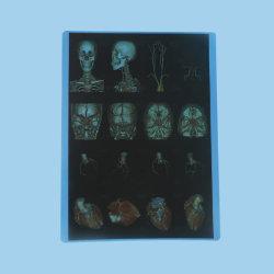 Medizinischer trockener Film druckte durch normale Tintenstrahl-Drucker