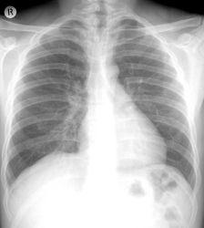 X-ray-Filme 10X12 in der Fabrik China Medical Films