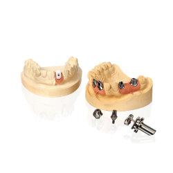 Mer laboratoire dentaire Implant Restorations vis couronne conservés Implant dentaire