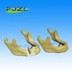 Os fabricantes de implantes dentários modelo broca odontológica alimentação