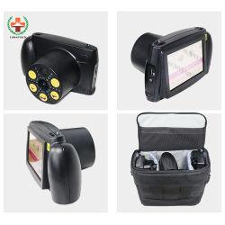Sy-V800 Dispositivo oftalmológico médicos portátiles Screener Visión Auto para bebés y ancianos