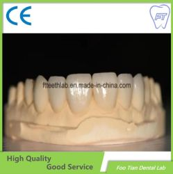 Tandheelkundige materialen Crown Dental Lab orthodontische producten Natural Ultra Dunne fineer voor een perfecte glimlach