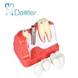Un2017 4 fois le modèle de soins dentaires Implant Pont de la Couronne de l'analyse de l'éducation Modèle de l'implant pour communiquer avec le patient