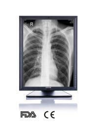 진단 장비용 CE FDA 승인 의료 기기