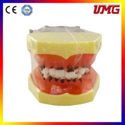 歯のモデル歯科インプラントモデルPeriodentalの病気モデル