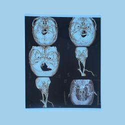 의학 인쇄를 위한 파란 엑스레이 장 8*10 잉크 제트 필름 플레스틱 필름
