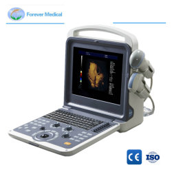 CE ISO Full Digital Farbdoppler Ultraschallgerät