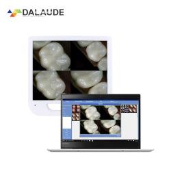 Nuevo diseño de la Cámara Intraoral de odontología con CE
