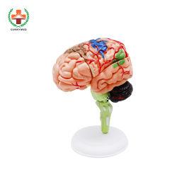 Си-N012 медицинского образования головки модели для головного мозга и легких вооружений
