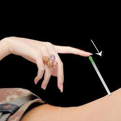 Pijnloos van de Naald van de Geneeskunde van Zhongyantaihe 100PCS Chinese Medische Beschikbare Steriele met de Naald Droge Needling van de Acupunctuur van de Buis