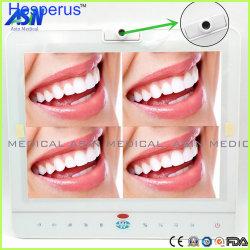 Moniteur 15 pouces dentaire filaire orale tout en un système de caméra VGA+Video+Hesperus USB