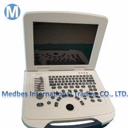El equipo de diagnóstico médico ecógrafo portátil B M-B580