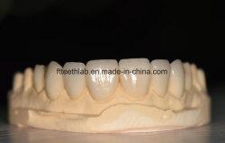 치과 재료는 크라운 완벽한 미소를 위한 치과 실험실 교정 제품 자연적인 매우 얇은 베니어를 공급한다