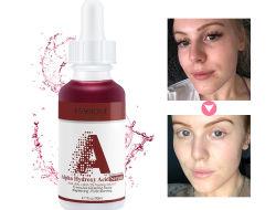 OEM Verouderen van de Zorg van de Huid het Kosmetische het Anti Wittende Hyaluronic Zure Serum van het Gezicht van de Vitamine C
