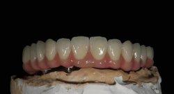 Gecementeerde/Geschroefte TandImplant Kroon, Volledige Implant van de Tand van de Mond Brug
