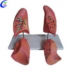 Buen precio del modelo de enseñanza de anatomía pulmonar