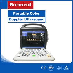 Портативный цветного доплеровского ультразвукового сканера медицинское оборудование для больницы