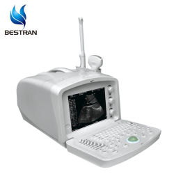 BT-Ud007 كمبيوتر محمول رقمي رخيص أجهزة التشخيص بالموجات فوق الصوتية المحمولة أجهزة الموجات فوق الصوتية آلة من أجل الإنسان