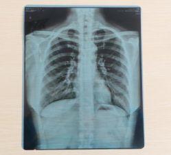 Film de radiographie médicale pour l'impression Image Cr