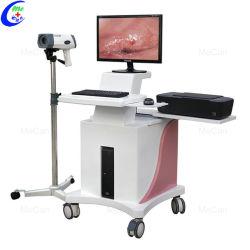 Electrónica Digital Imaging Ginecología Vagina Optical colposcopio con carro