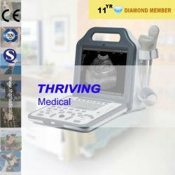 Appareil à ultrasons à usage vétérinaire numérique portable (thr-US-N5V)